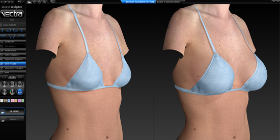 3D Breast Imaging Rendering