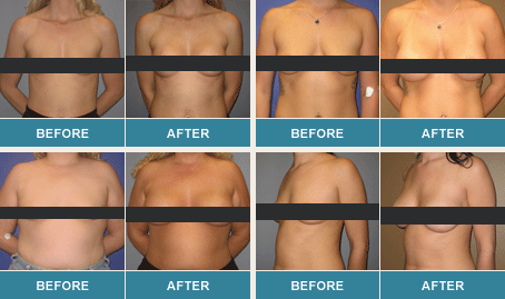 Patients before and after a breast lift