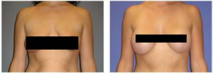 Patient is shown before and 2 years post op.