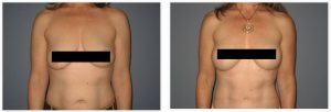 Patient is shown before and 14 months post op.