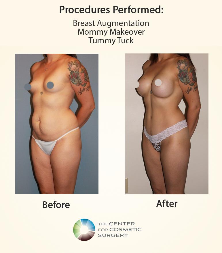 September Blog Mommy Makeover Before and After