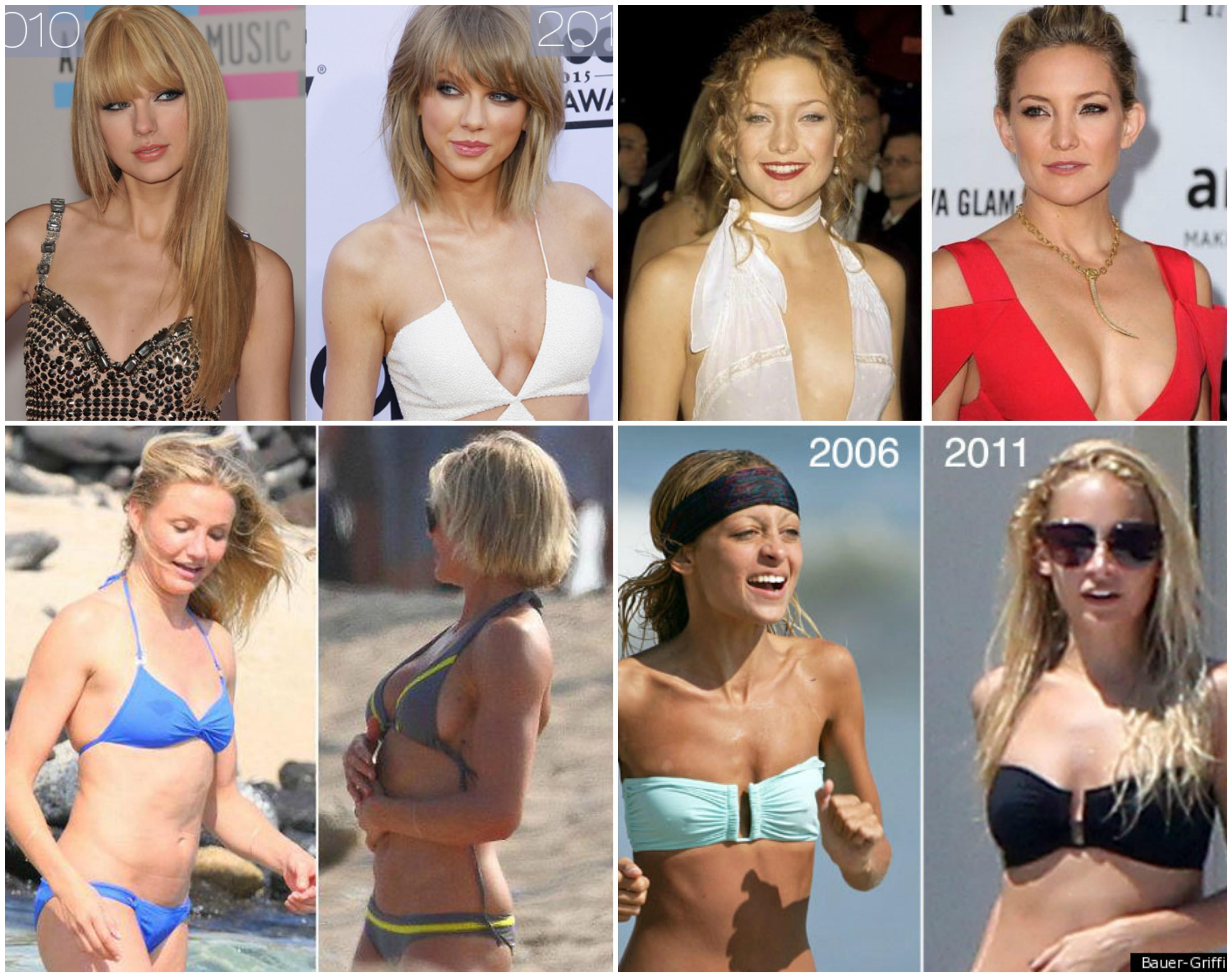 Nicoles breast augmentation website
